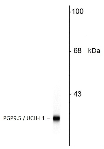 Anti Human Protein Gene Product 9.5 Antibody, clone BH7 thumbnail image 2