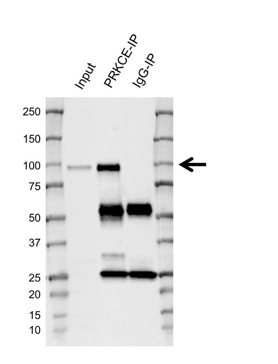 Anti Protein Kinase C Epsilon Antibody, clone CD04/1C7 (PrecisionAb Monoclonal Antibody) thumbnail image 2