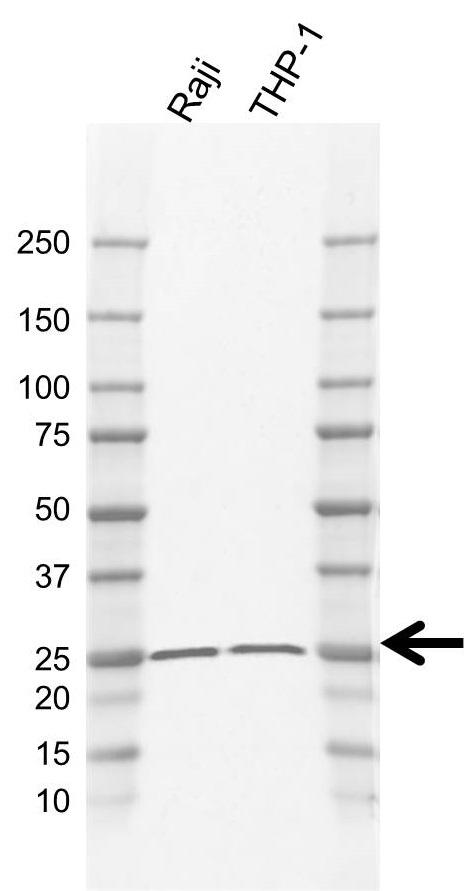 Anti PSMB10 Antibody, clone AB01/4E9 (PrecisionAb Monoclonal Antibody) gallery image 1