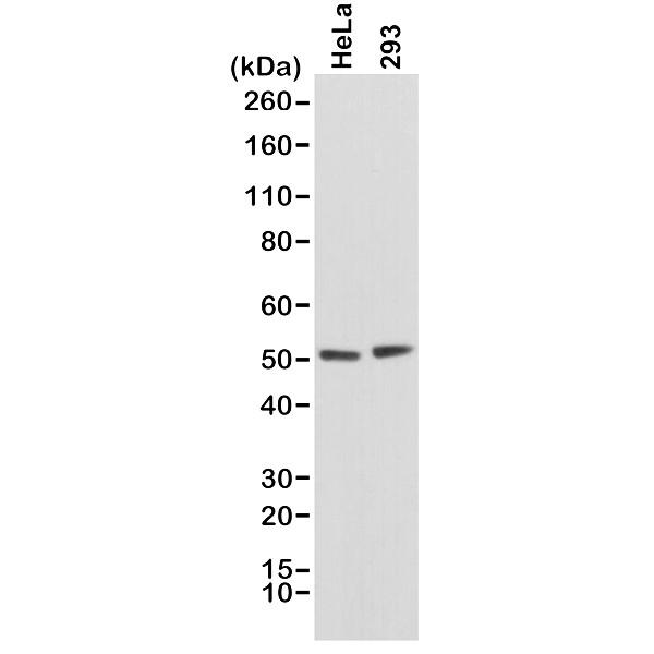 Anti PTEN Tumor Suppressor Protein Antibody, clone RM265 thumbnail image 1