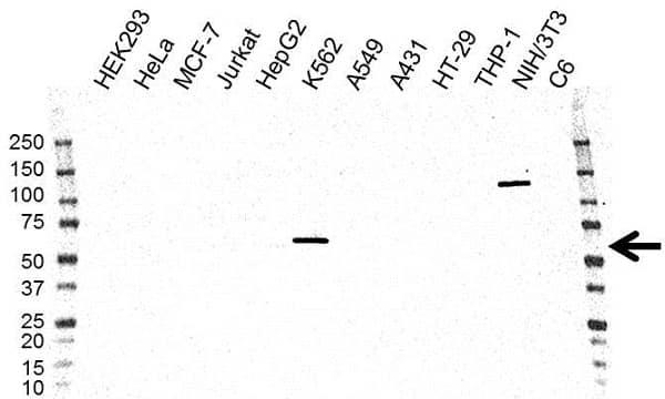 Anti Pyruvate Kinase PKLR Antibody, clone OTI1F3 (PrecisionAb Monoclonal Antibody) gallery image 1