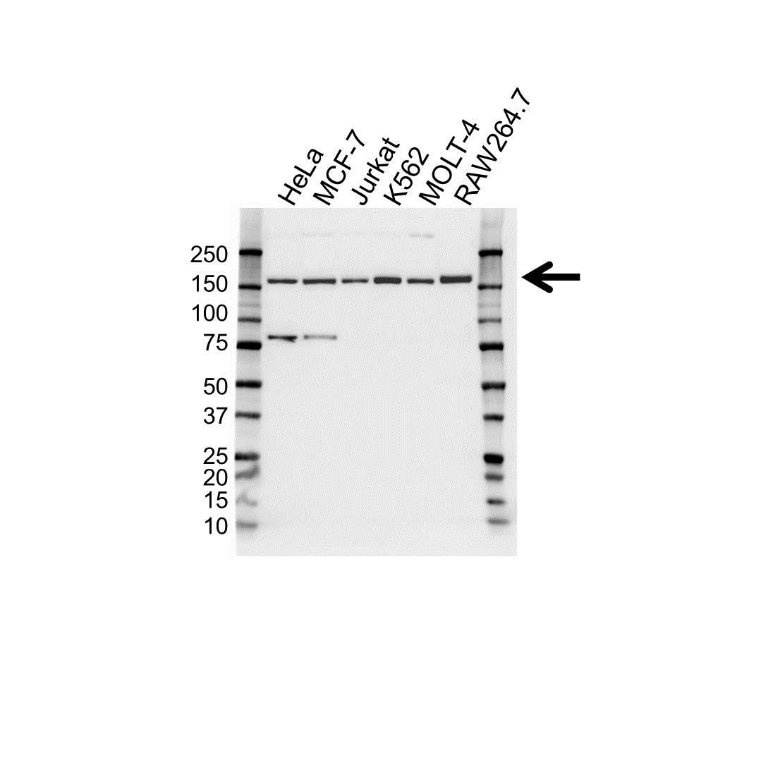 Anti RAD50 Antibody (PrecisionAb Monoclonal Antibody) gallery image 1