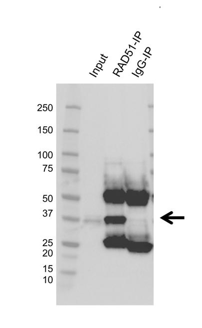 Anti RAD51 Antibody, clone AB02/1A3 (PrecisionAb Monoclonal Antibody) thumbnail image 2