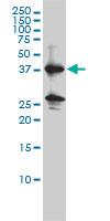Anti Human Renin Antibody, clone 2H2 gallery image 1
