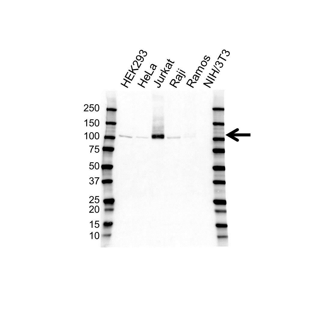 Anti Retinoblastoma Gene Protein Antibody (PrecisionAb Monoclonal Antibody) gallery image 1