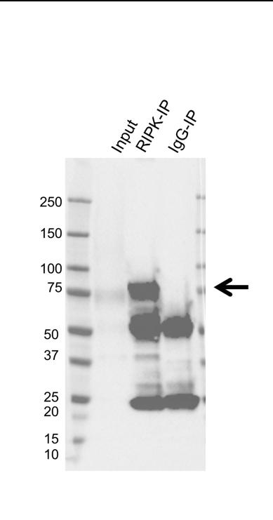 Anti RIPK1 Antibody, clone AB01/3C7 (PrecisionAb Monoclonal Antibody) thumbnail image 2