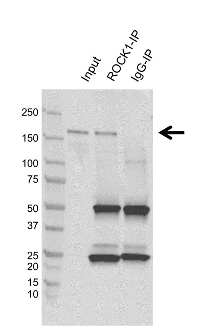 Anti ROCK1 Antibody, clone AB01/1F3 (PrecisionAb Monoclonal Antibody) thumbnail image 2