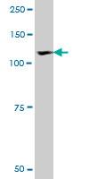 Anti Human ROR1 Antibody, clone 2F8 gallery image 1