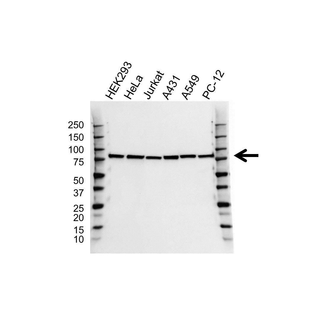 Anti RPS6KA3 Antibody (PrecisionAb™ Monoclonal Antibody) gallery image 1