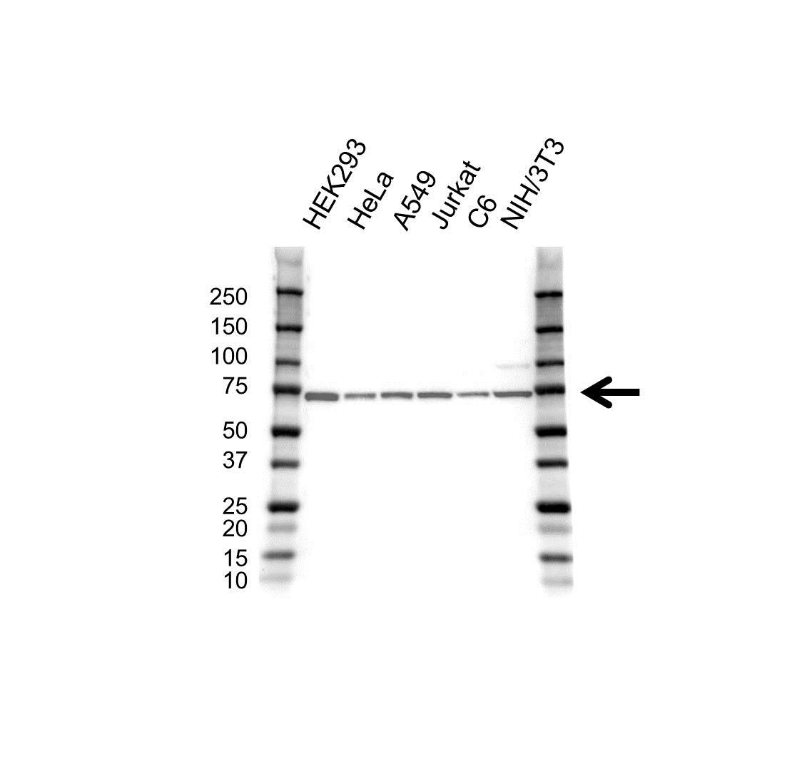 Anti RPS6KB2 Antibody (PrecisionAb Monoclonal Antibody) gallery image 1