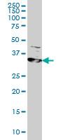 Anti Human RRM2 Antibody, clone 1E1 thumbnail image 1