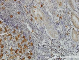 Anti Human RRM2 Antibody, clone 1E1 thumbnail image 3
