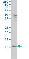 Anti Human S100A4 Antibody, clone 1F12-1G7 thumbnail image 2