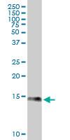 Anti Human S100A9 Antibody, clone 4G9 gallery image 1