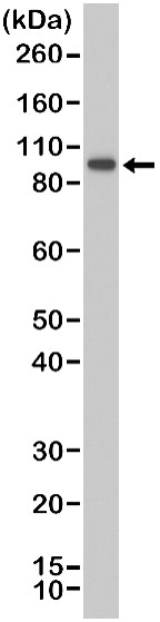 Anti SATB2 Antibody, clone RM365 thumbnail image 1