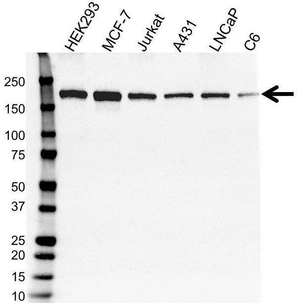 Anti SETDB1 Antibody (PrecisionAb Monoclonal Antibody) gallery image 1