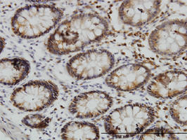 Anti Human SGK3 Antibody, clone 2A7 gallery image 1