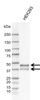 Anti SIRT2 Antibody, clone AB01/1D10 (PrecisionAb Monoclonal Antibody) thumbnail image 1