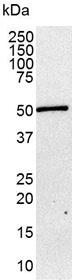 Anti Human Somatostatin Receptor 1 Antibody, clone sstr1 thumbnail image 2