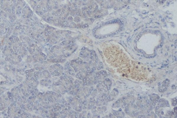 Anti Human Somatostatin Receptor 5 Antibody, clone sstr5 gallery image 1