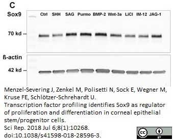 Anti Human SOX9 Antibody, clone 3C10 thumbnail image 10