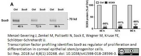 Anti Human SOX9 Antibody, clone 3C10 thumbnail image 11