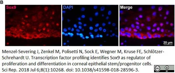 Anti Human SOX9 Antibody, clone 3C10 thumbnail image 5