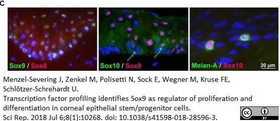 Anti Human SOX9 Antibody, clone 3C10 thumbnail image 6