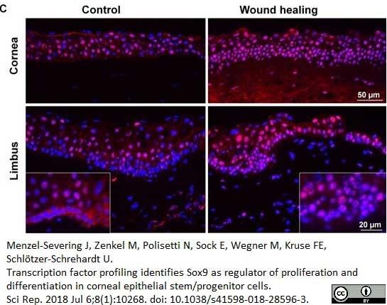 Anti Human SOX9 Antibody, clone 3C10 thumbnail image 9