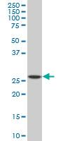Anti Human SPI1 Antibody, clone 2G1 thumbnail image 1