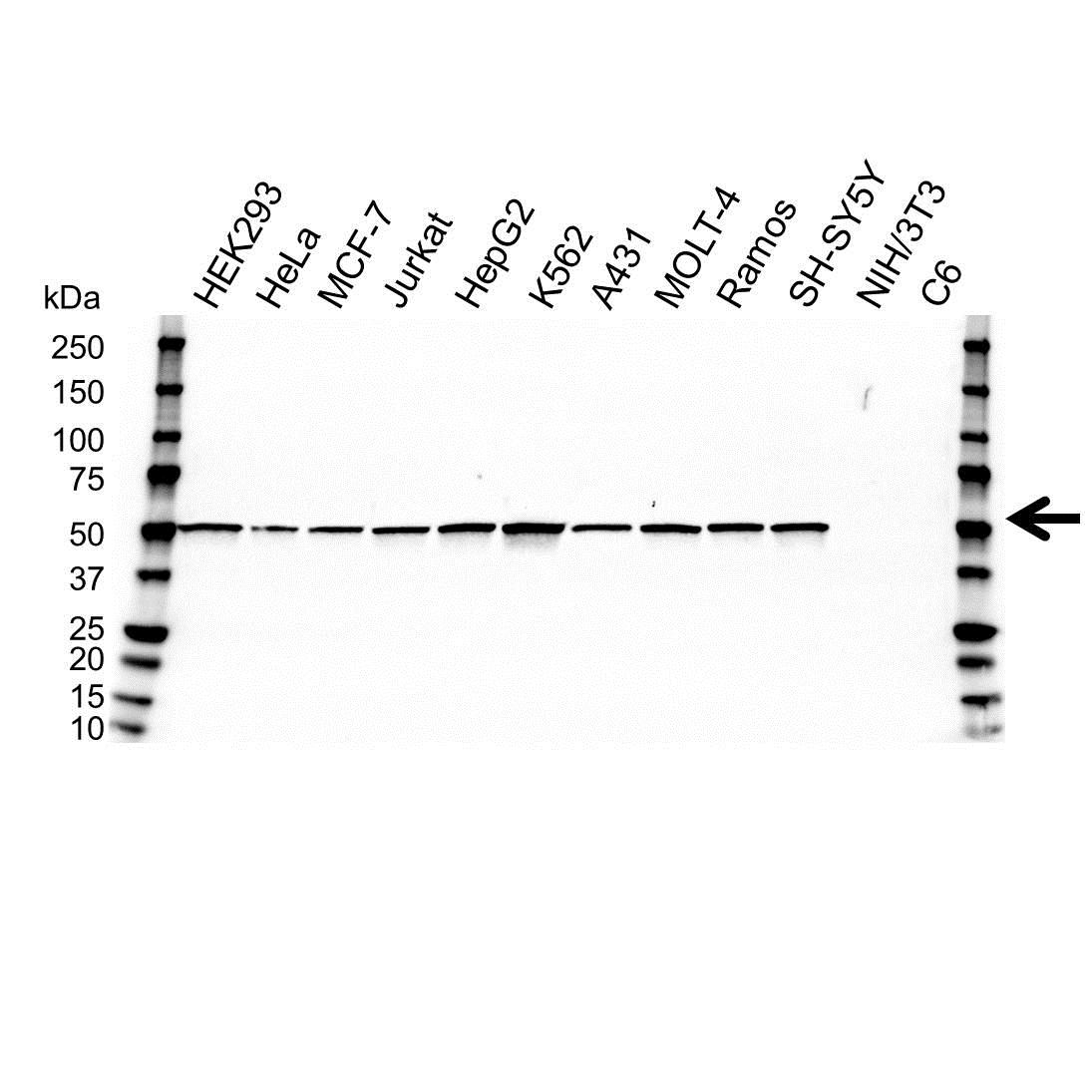 Anti SSB Antibody, clone OTI1E11 (PrecisionAb™ Monoclonal Antibody) gallery image 1