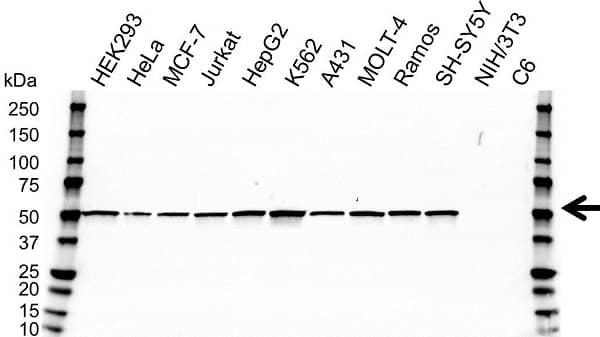 Anti SSB Antibody, clone OTI1E11 (PrecisionAb Monoclonal Antibody) gallery image 1