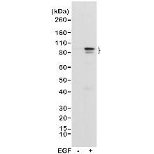 Anti STAT3 (pTyr705) Antibody, clone RM261 (PrecisionAb Monoclonal Antibody) thumbnail image 1