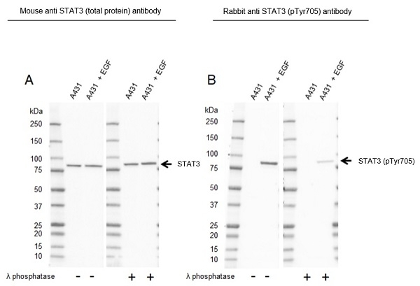 Anti STAT3 (pTyr705) Antibody, clone RM261 (PrecisionAb Monoclonal Antibody) thumbnail image 3