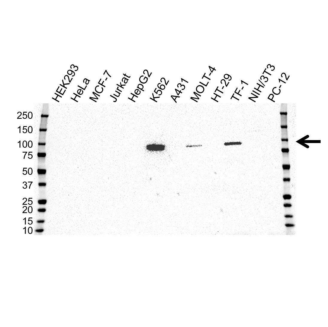 Anti STAT5A Antibody, clone OTI6D6 (PrecisionAb™ Monoclonal Antibody) gallery image 1