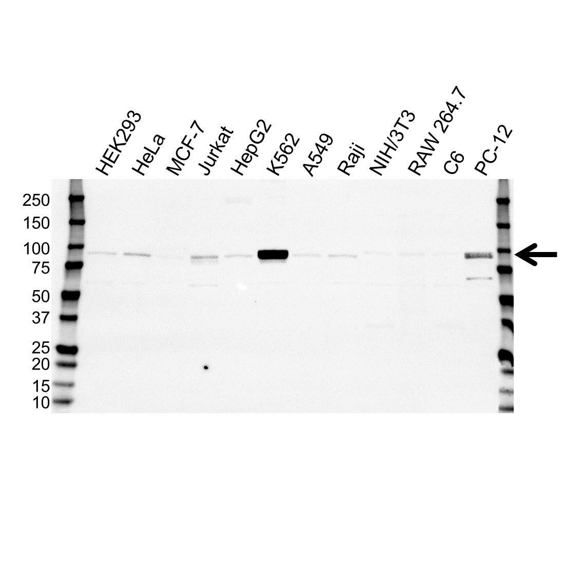 Anti STAT5B Antibody (PrecisionAb Monoclonal Antibody) gallery image 1
