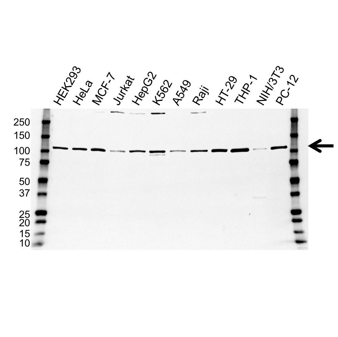 Anti STAT6 Antibody (PrecisionAb Monoclonal Antibody) gallery image 1