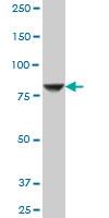 Anti Human STIM1 Antibody, clone 5A2 thumbnail image 3