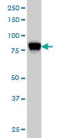 Anti Human STIM1 Antibody, clone 5A2 thumbnail image 4