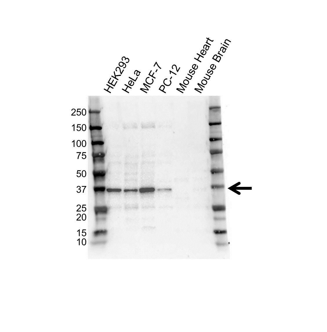 Anti STUB1 Antibody (PrecisionAb Monoclonal Antibody) gallery image 1
