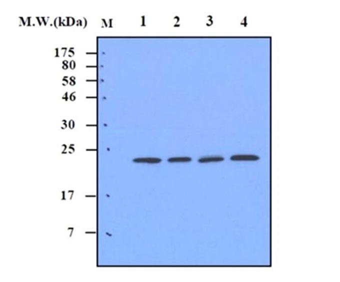 Anti Superoxide Dismutase (MN) Antibody, clone 2A1 gallery image 1