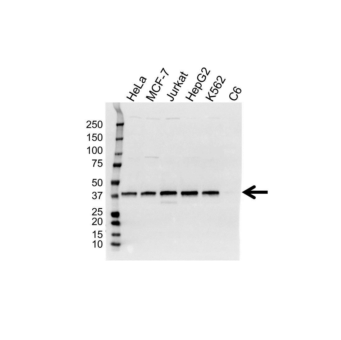 Anti Survival Motor Neuron Protein Antibody (PrecisionAb™ Monoclonal Antibody) gallery image 1