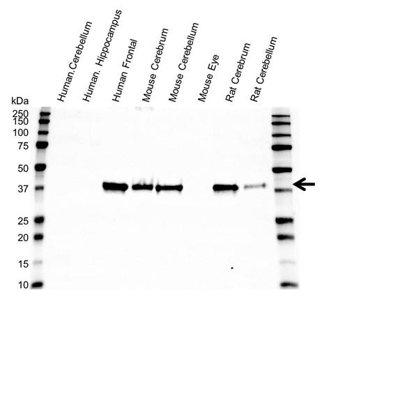 Anti Synaptophysin Antibody (PrecisionAb Monoclonal Antibody) gallery image 1