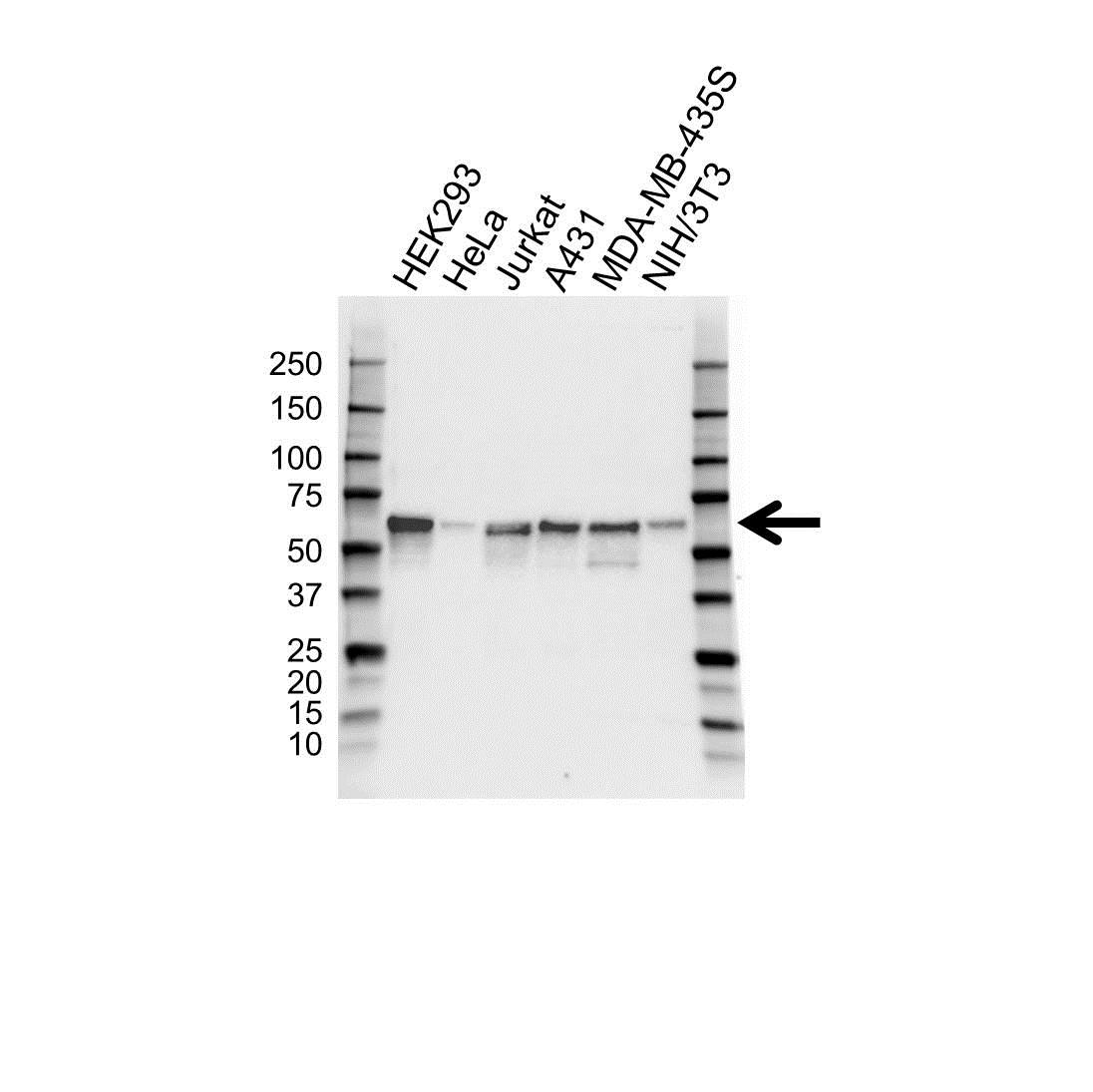 Anti TAB1 Antibody (PrecisionAb™ Monoclonal Antibody) gallery image 1