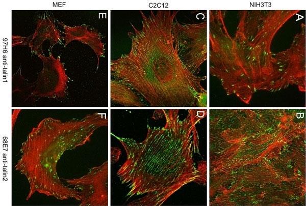 Anti Human Talin-1 Antibody, clone 97H6 thumbnail image 3