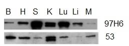 Anti Human Talin-2 Antibody, clone 53.8 thumbnail image 2