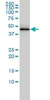 Anti Human TDP43 Antibody, clone 2E2-D3 thumbnail image 1