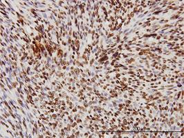 Anti Human TDP43 Antibody, clone 2E2-D3 thumbnail image 2