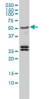Anti Human TFEB Antibody, clone 3E1-G6 thumbnail image 2