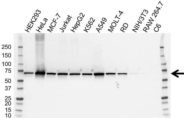 Anti TKT Antibody, clone OTI5H3 (PrecisionAb Monoclonal Antibody) gallery image 1